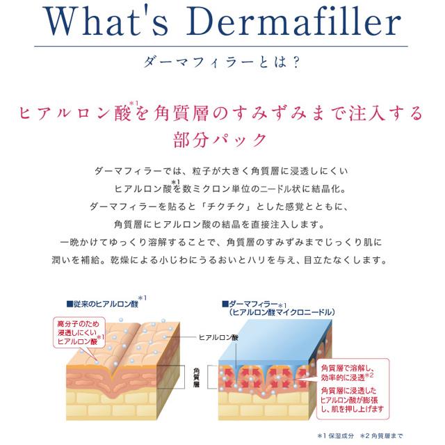 ダーマフィラー(Dermafiller)とは